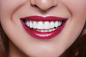Smile: the best accessory